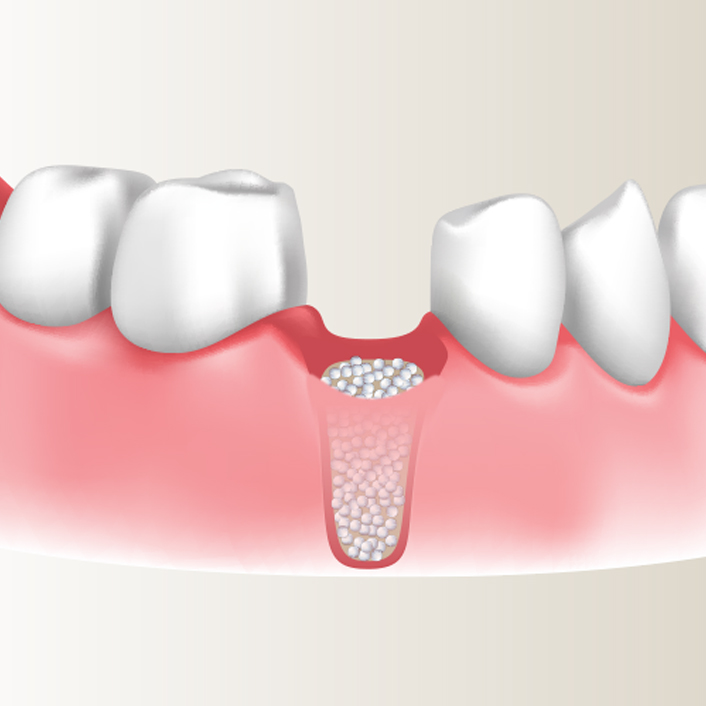 bone grafting diagram